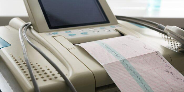 Kardiotokografia, potoczne KTG – czym ono jest?