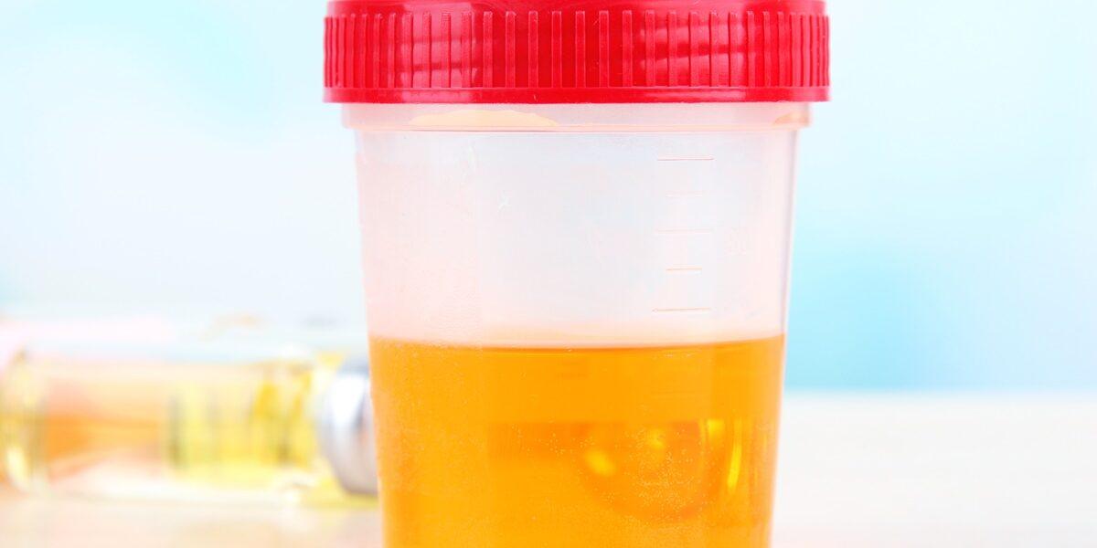 poziom glukozy i cial ketonoweych we krwi kobiety w ciąży