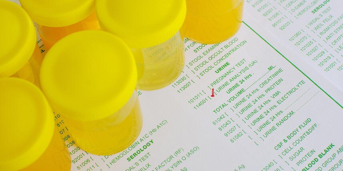 Poziom glukozy i ciał ketonowych w moczu a cukrzyca w ciąży