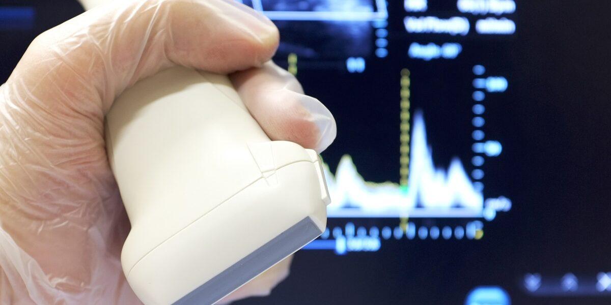 USG tętnic szyjnych i kręgowych