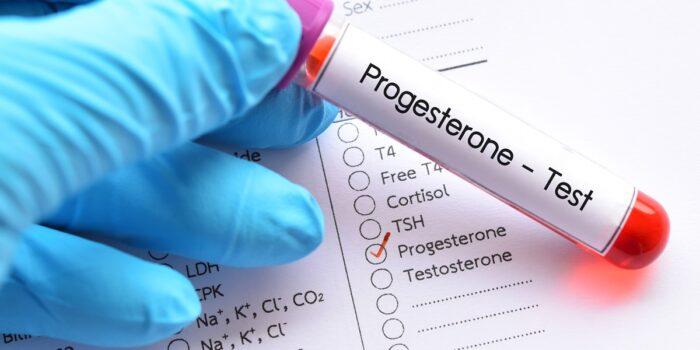 Przygotowanie do badania hormonów