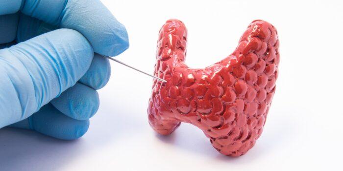 Biopsja aspiracyjna cienkoigłowa (BAC)