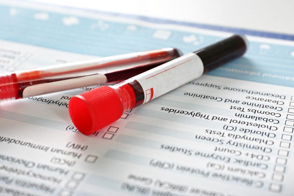 badanie krwi poronienie